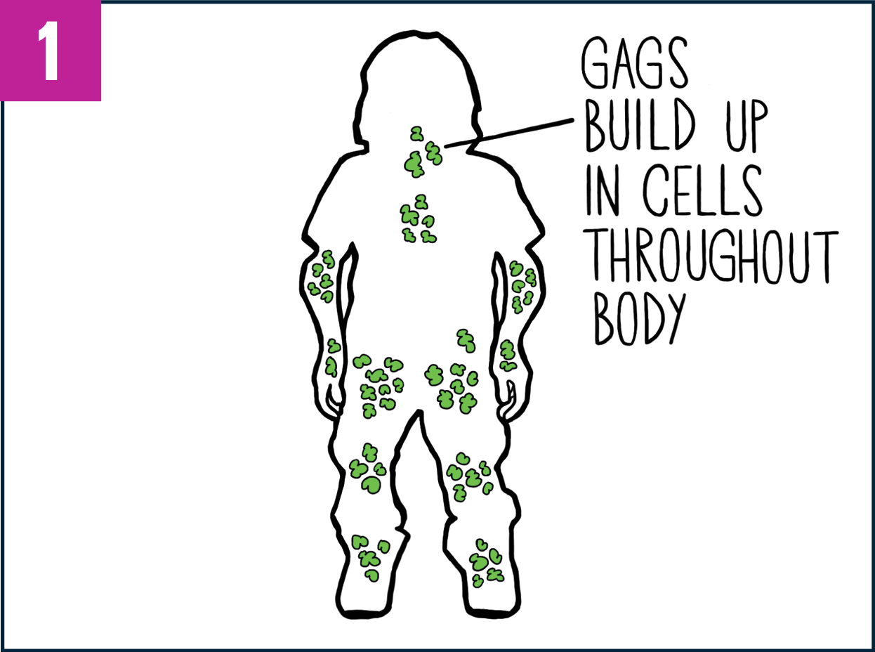 Outline of a patient's body showing GAG buildup in various areas of the body