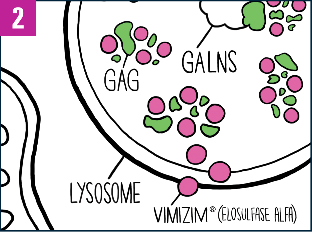 Close-up of cell showing increased GALNS enzyme in the lysosomes
