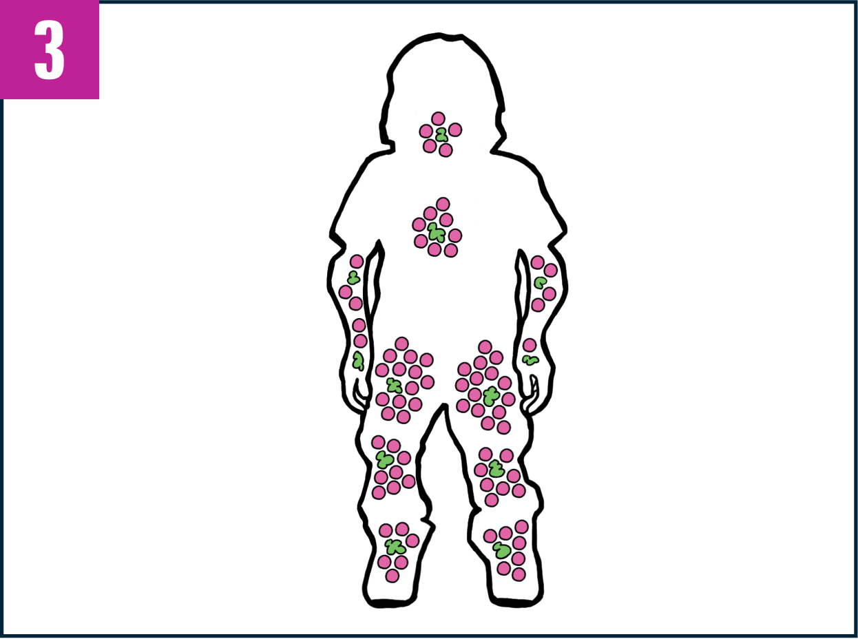 Outline of patient's body showing increased GALNS